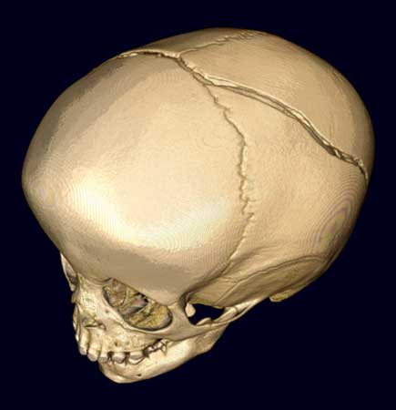 3D image showing a large skull fracture