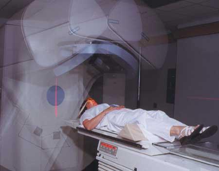Radiotherapy procedure