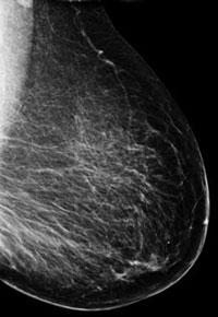 imagen del seno