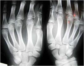 X-ray of the hands.
