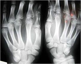 Radiografía de las manos.