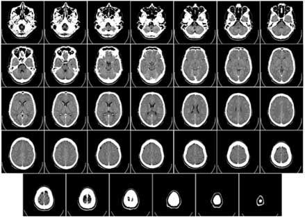 A series of images resulting from a CT scan.