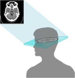 Ilustración que muestra una imagen CT de la cabeza.