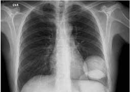 Imagen de rayos X del cuerpo.